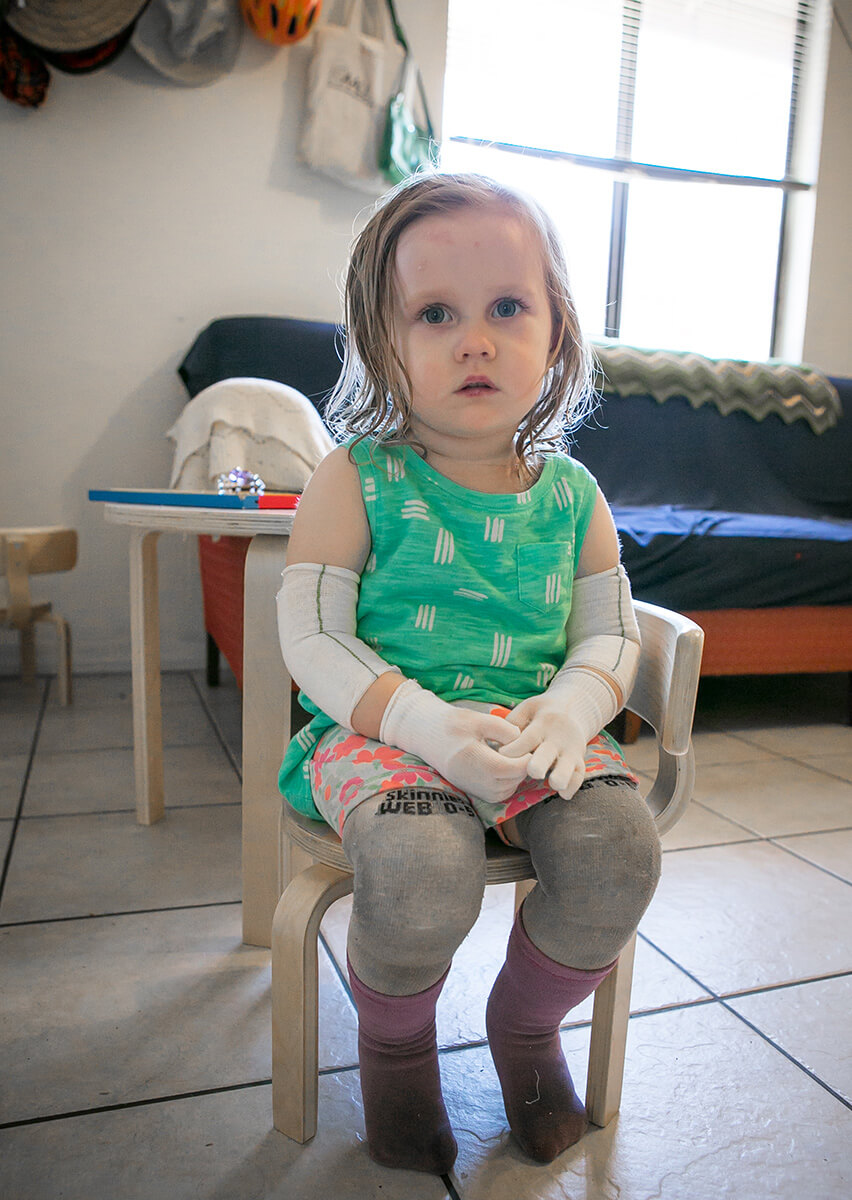 This child has rare condition called Epidermolysis Bullosa in which blisters form all over the skin. Her parents asked Kathleen to photograph the 4-hour process of bathing and rebandaging her body. It is a privilege to document such intimate aspects of a family's life.